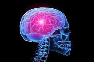 estado-cerebral-